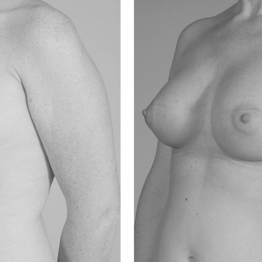 http://www.plasticka-chirurgie-dvorak.cz/wp-content/uploads/2016/10/Augmentace-anatomickými-implantáty-pred-po-540x540.jpg