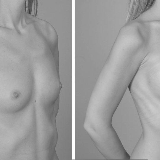 http://www.plasticka-chirurgie-dvorak.cz/wp-content/uploads/2016/10/Augmentace-kulatými-implantáty-pred-po-540x540.jpg