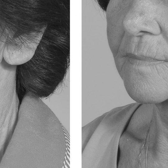 http://www.plasticka-chirurgie-dvorak.cz/wp-content/uploads/2016/10/Face-lift-pred-po-540x540.jpg