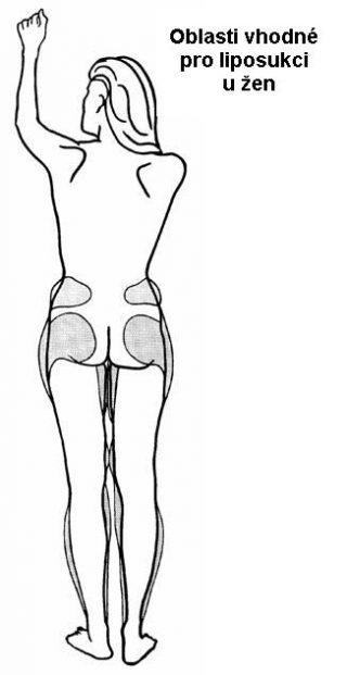 liposukce3