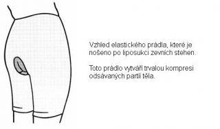 liposukce7