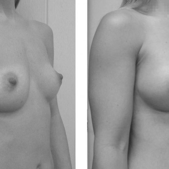 http://www.plasticka-chirurgie-dvorak.cz/wp-content/uploads/2016/11/2-Augmentace-kulatými-implantáty-pred-po2-540x540.jpg
