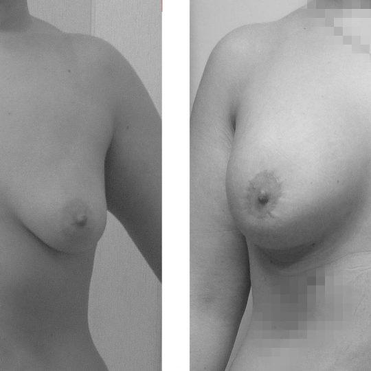http://www.plasticka-chirurgie-dvorak.cz/wp-content/uploads/2016/11/2-Augmentace-s-modelací-PRED-PO2-540x540.jpg