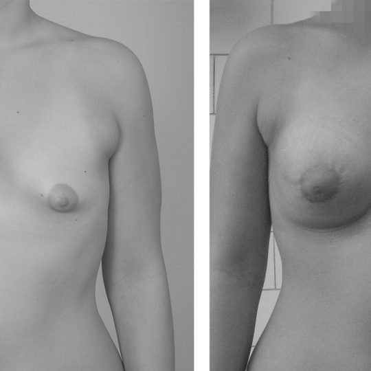 http://www.plasticka-chirurgie-dvorak.cz/wp-content/uploads/2016/11/Augmentace-tuberozních-prsou-pred-po2-540x540.jpg